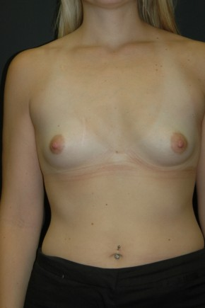 Before Photo - Breast Augmentation - Case #3482 - Sientra Breast Augmentation MP-350cc - Frontal View
