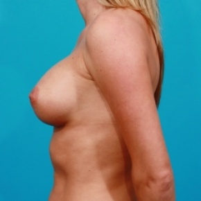 After Photo - Breast Augmentation - Case #2481 - Saline Breast Augmentation - Lateral View