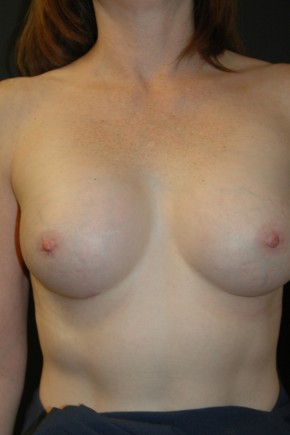 After Photo - Breast Augmentation - Case #3485 - Breast Augmentation using Allergan Style 15- 286cc - Frontal View