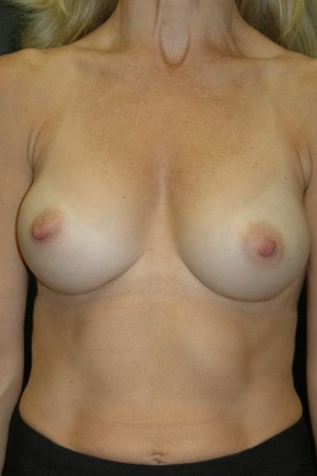 After Photo - Breast Augmentation - Case #3486 - Breast Augmentation using Allergan Style 410-MF255cc - Frontal View