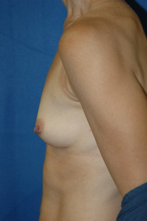 Before Photo - Breast Augmentation - Case #3486 - Breast Augmentation using Allergan Style 410-MF255cc - Lateral View