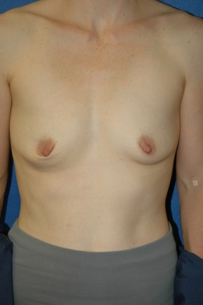 Before Photo - Breast Augmentation - Case #3489 - Breast Augmentation using Allergan Style 410-MF335cc - Frontal View