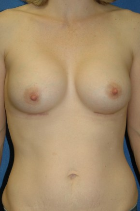 After Photo - Breast Augmentation - Case #3489 - Breast Augmentation using Allergan Style 410-MF335cc - Frontal View