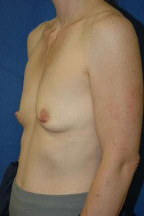 Before Photo - Breast Augmentation - Case #3489 - Breast Augmentation using Allergan Style 410-MF335cc - Oblique View