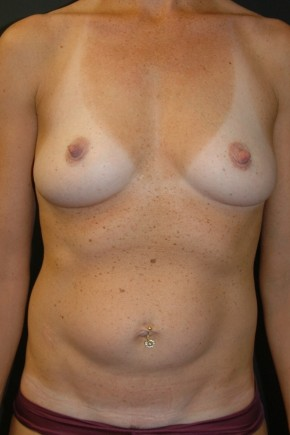 "Before Photo - Breast Augmentation - Case #3492 - ""Mommy Make-Over"" Breast Augmentation and Abdominoplasty using Allergan Style 410-FF535cc - Frontal View"
