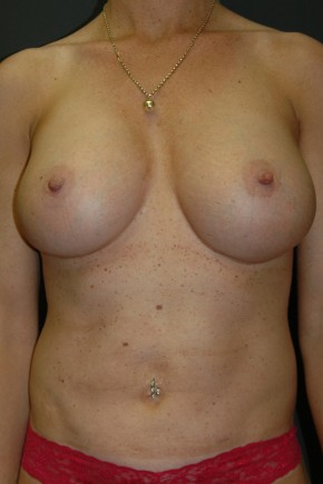 "After Photo - Breast Augmentation - Case #3492 - ""Mommy Make-Over"" Breast Augmentation and Abdominoplasty using Allergan Style 410-FF535cc - Frontal View"