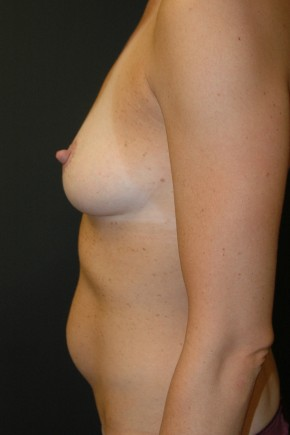 "Before Photo - Breast Augmentation - Case #3492 - ""Mommy Make-Over"" Breast Augmentation and Abdominoplasty using Allergan Style 410-FF535cc - Lateral View"