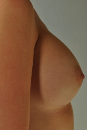 After Photo - Breast Augmentation - Case #2974 - Breast Augmentation, Submuscular - Lateral View