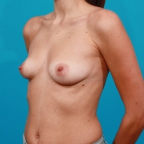 Before Photo - Breast Augmentation - Case #2501 - Silicone Breast Augmentation - Oblique View