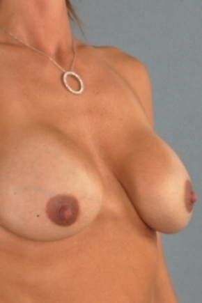 Before Photo - Breast Augmentation - Case #2975 - Breast Implant Exchange - Frontal View