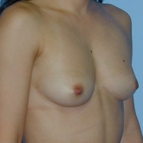 Before Photo - Breast Augmentation - Case #2586 - Saline Breast Implants - Lateral View