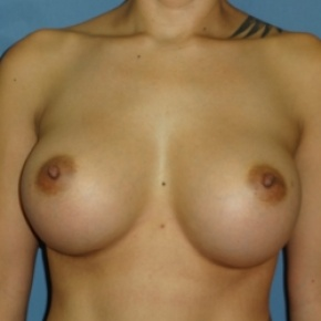 After Photo - Breast Augmentation - Case #2938 - Frontal View