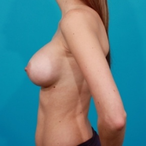 After Photo - Breast Augmentation - Case #2501 - Silicone Breast Augmentation - Lateral View