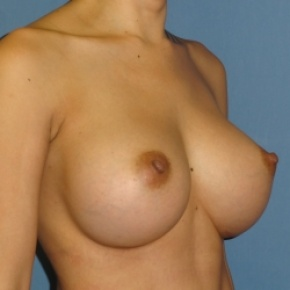 After Photo - Breast Augmentation - Case #2938 - Oblique View