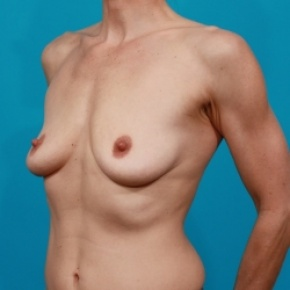 Before Photo - Breast Augmentation - Case #2502 - Silicone Breast Implants - Oblique View