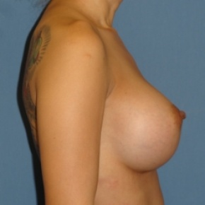After Photo - Breast Augmentation - Case #2938 - Lateral View