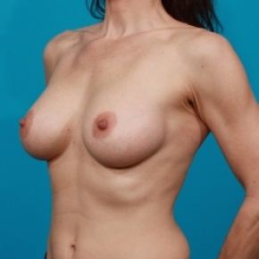 After Photo - Breast Augmentation - Case #2502 - Silicone Breast Implants - Oblique View