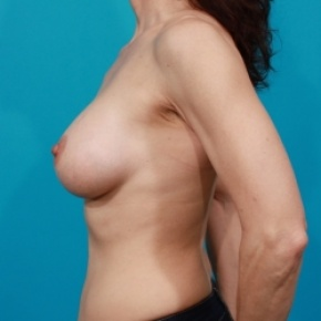 After Photo - Breast Augmentation - Case #2502 - Silicone Breast Implants - Lateral View