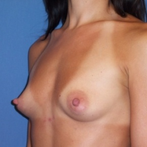 Before Photo - Breast Augmentation - Case #2939 - Oblique View