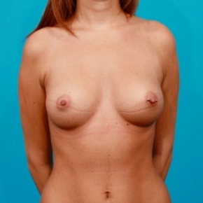 Before Photo - Breast Augmentation - Case #2509 - Silicone Breast Augmentation - Frontal View