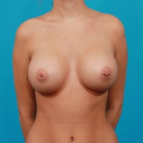 After Photo - Breast Augmentation - Case #2509 - Silicone Breast Augmentation - Frontal View