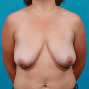 Before Photo - Breast Lift - Case #2485 - Frontal View