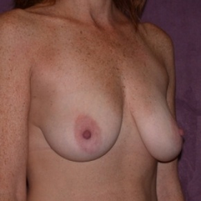 Before Photo - Breast Lift - Case #2760 - breast lift (mastopexy) - Oblique View