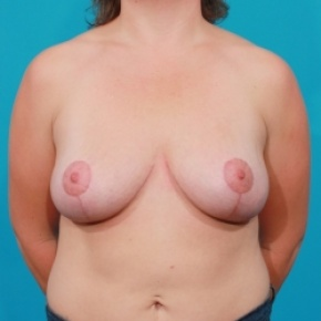 After Photo - Breast Lift - Case #2485 - Frontal View