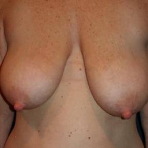 Before Photo - Breast Lift - Case #2966 - BILATERAL MASTOPEXY - Frontal View