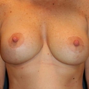 After Photo - Breast Lift - Case #2966 - BILATERAL MASTOPEXY - Frontal View