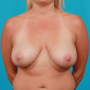 Before Photo - Breast Lift - Case #2500 - Breast Lift / Small Reduction - Frontal View