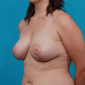 After Photo - Breast Lift - Case #2973 - Anchor Mastopexy - Oblique View