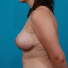 After Photo - Breast Lift - Case #2973 - Anchor Mastopexy - Lateral View