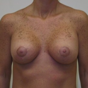 After Photo - Breast Lift - Case #3443 - Breast Lift with Saline Filled Implants - Frontal View