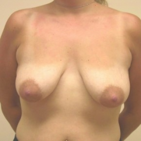 Before Photo - Breast Lift - Case #3444 - Bilateral breast lift with saline implants - Frontal View