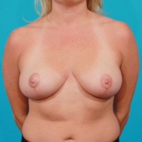 After Photo - Breast Lift - Case #2500 - Breast Lift / Small Reduction - Frontal View