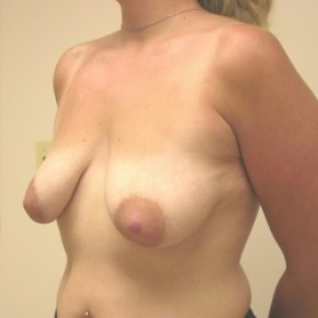 Before Photo - Breast Lift - Case #3444 - Bilateral breast lift with saline implants - Oblique View
