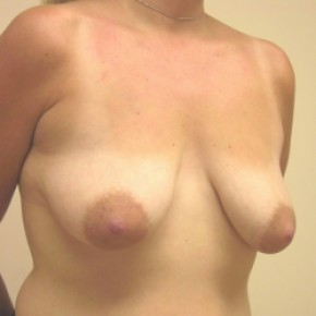 Before Photo - Breast Lift - Case #3444 - Bilateral breast lift with saline implants - Lateral View
