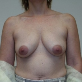 Before Photo - Breast Lift - Case #3445 - Bilateral breast lift with saline implants - Frontal View