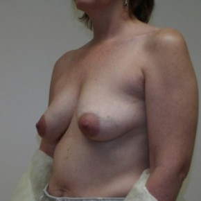 Before Photo - Breast Lift - Case #3445 - Bilateral breast lift with saline implants - Lateral View