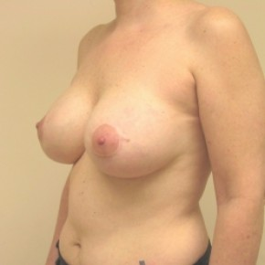 After Photo - Breast Lift - Case #3445 - Bilateral breast lift with saline implants - Lateral View