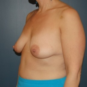 Before Photo - Breast Lift - Case #3466 - Bilateral vertical breast lift with saline implants - Oblique View