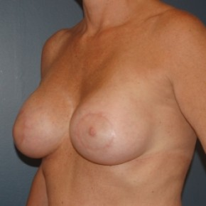 After Photo - Breast Lift - Case #3467 - Bilateral periareolar breast lift with saline implants - Oblique View
