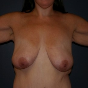 Before Photo - Breast Lift - Case #3476 - Bilateral Breast lift and arm lift - Frontal View