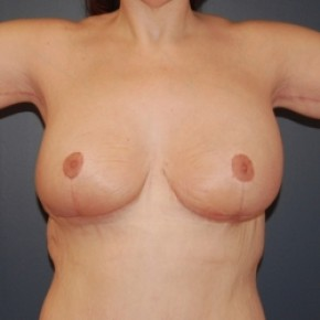 After Photo - Breast Lift - Case #3476 - Bilateral Breast lift and arm lift - Frontal View