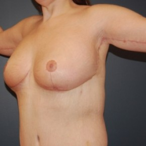 After Photo - Breast Lift - Case #3476 - Bilateral Breast lift and arm lift - Oblique View