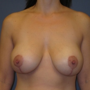 After Photo - Breast Lift - Case #2948 - Breast Lift with Augmentation - Frontal View