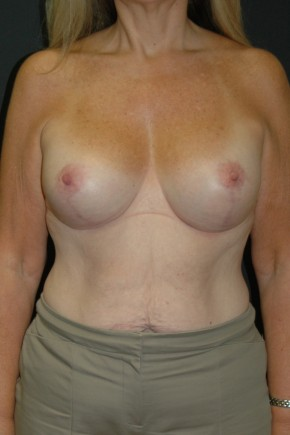 After Photo - Breast Lift - Case #3483 - Mastopexy with Breast Augmentation using Sientra MP-485cc - Frontal View
