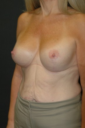 After Photo - Breast Lift - Case #3483 - Mastopexy with Breast Augmentation using Sientra MP-485cc - Oblique View