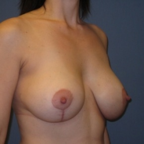 After Photo - Breast Lift - Case #2948 - Breast Lift with Augmentation - Oblique View
